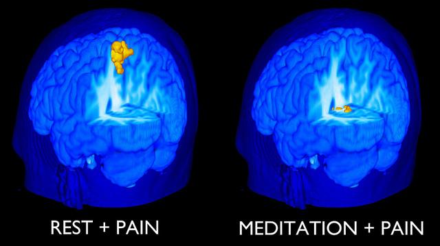Meditation och smärta